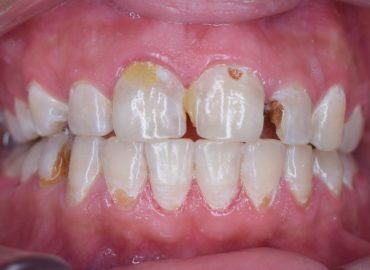 caries dentaires